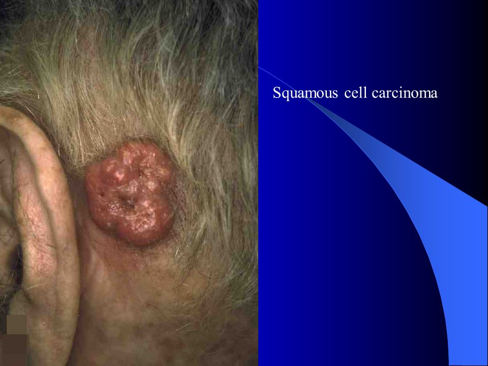Lesion removed from patient Basal Cell Carcinoma