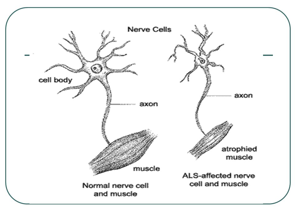 Symptoms of ALS Muscle weakness in one or more of the following: hands, arms, legs or muscles of speech, swallowing or breathing Twitching and cramping of muscles Impairment of the use of the arms and legs Thick speech and difficulty in projecting the voice Shortness of breath, difficulty breathing and swallowing