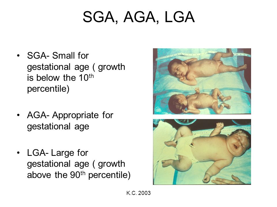 K.C. 2003 SGA, AGA, LGA SGA- Small for gestational age ( growth is below the 10 th percentile) AGA- Appropriate for gestational age LGA- Large for ges