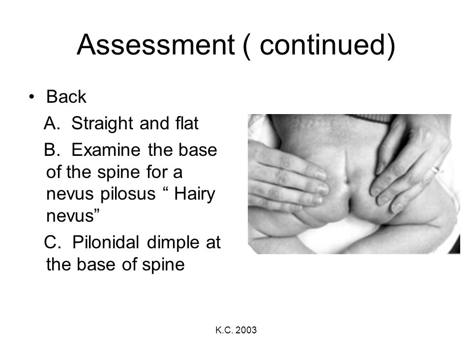 K.C. 2003 Assessment ( continued) Back A. Straight and flat B. Examine the base of the spine for a nevus pilosus Hairy nevus C. Pilonidal dimple at th