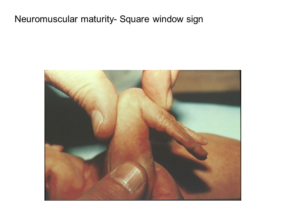 K.C. 2003 Neuromuscular maturity- Square window sign