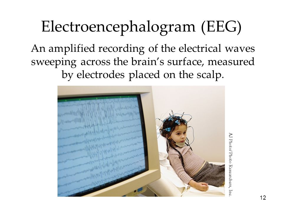 12 Electroencephalogram (EEG) An amplified recording of the electrical waves sweeping across the brains surface, measured by electrodes placed on the