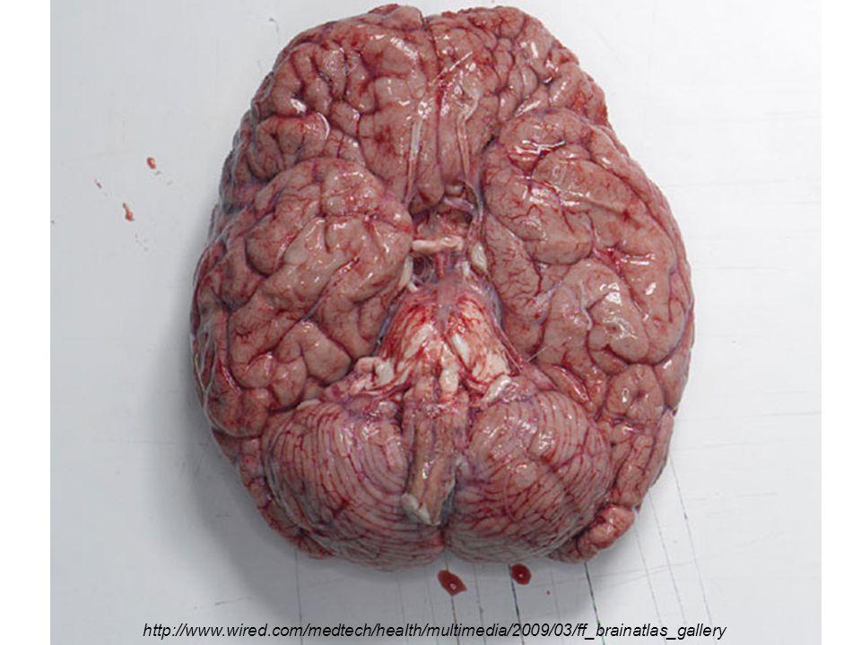 2 http://www.wired.com/medtech/health/multimedia/2009/03/ff_brainatlas_gallery