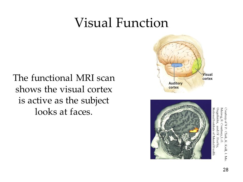 28 Visual Function The functional MRI scan shows the visual cortex is active as the subject looks at faces. Courtesy of V.P. Clark, K. Keill, J. Ma. M