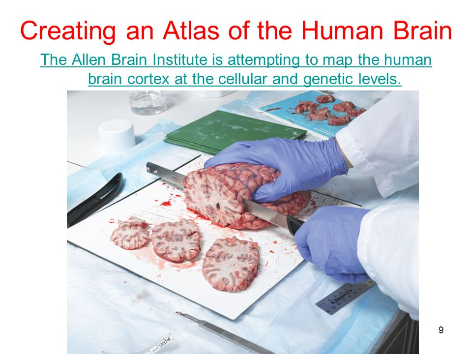 Creating an Atlas of the Human Brain The Allen Brain Institute is attempting to map the human brain cortex at the cellular and genetic levels. 9