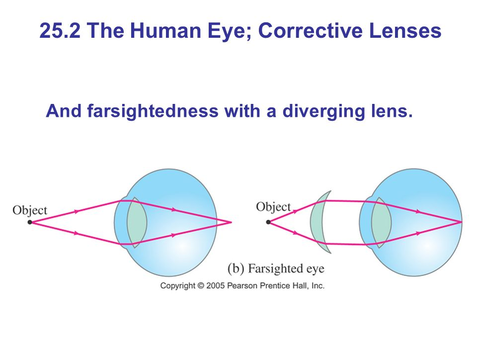 And farsightedness with a diverging lens. 25.2 The Human Eye; Corrective Lenses