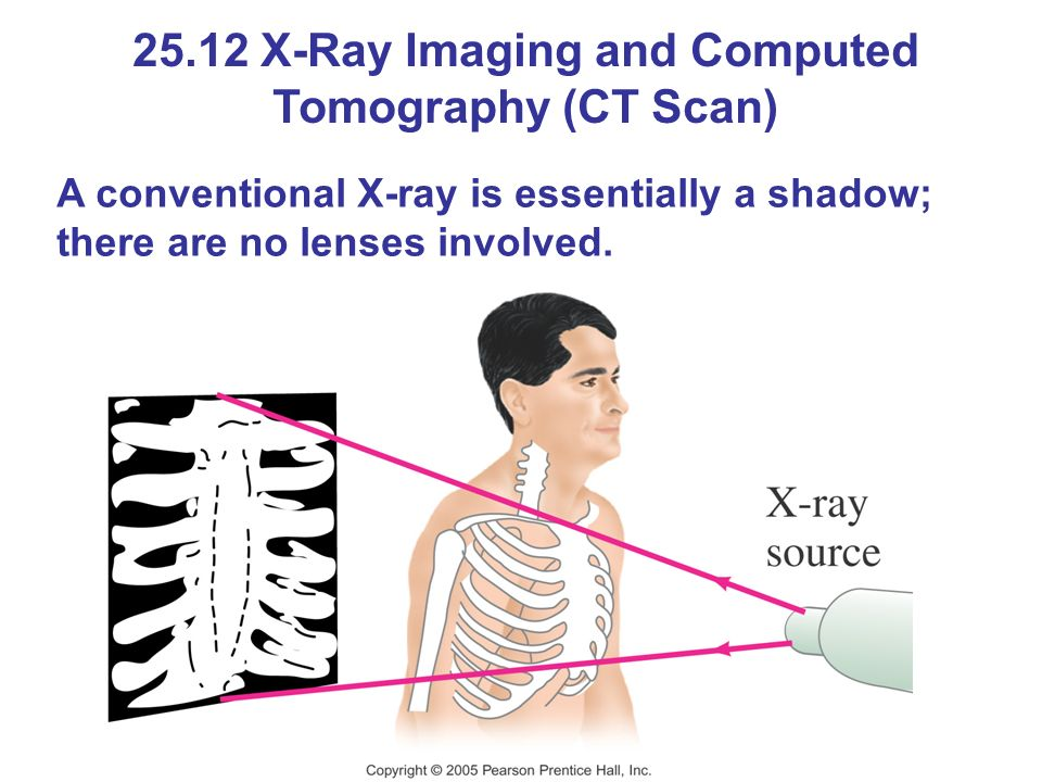 25.12 X-Ray Imaging and Computed Tomography (CT Scan) A conventional X-ray is essentially a shadow; there are no lenses involved.