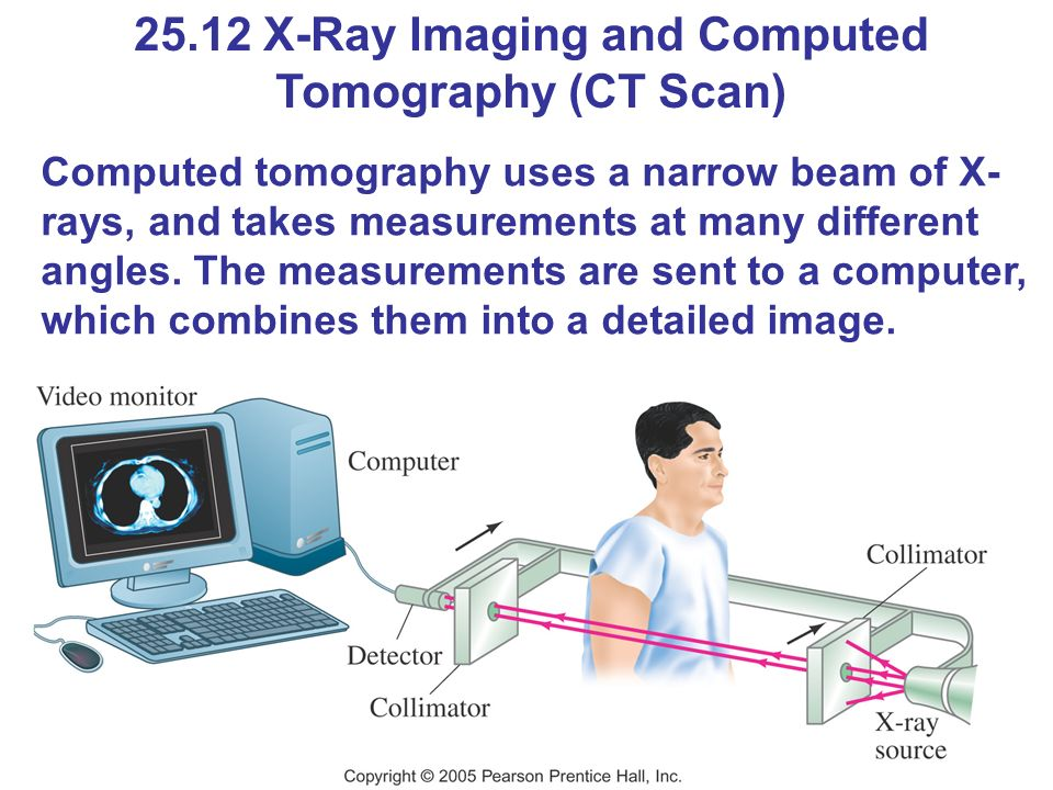 25.12 X-Ray Imaging and Computed Tomography (CT Scan) Computed tomography uses a narrow beam of X- rays, and takes measurements at many different angles.