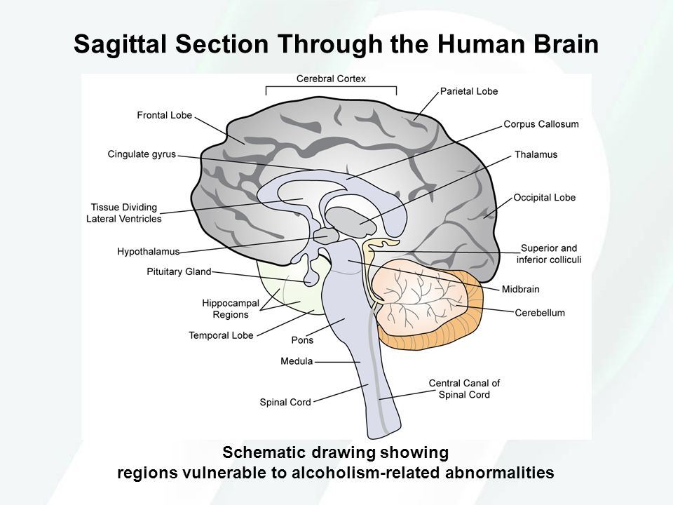 Sagittal Section Through the Human Brain Schematic drawing showing regions vulnerable to alcoholism-related abnormalities