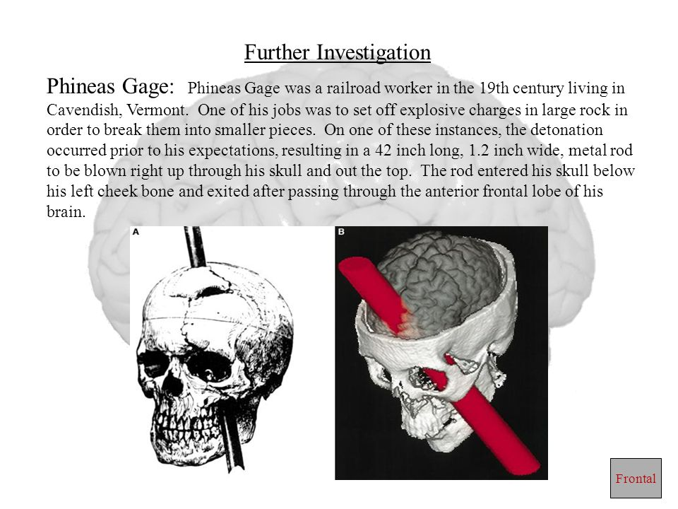 Further Investigation Phineas Gage: Phineas Gage was a railroad worker in the 19th century living in Cavendish, Vermont. One of his jobs was to set of
