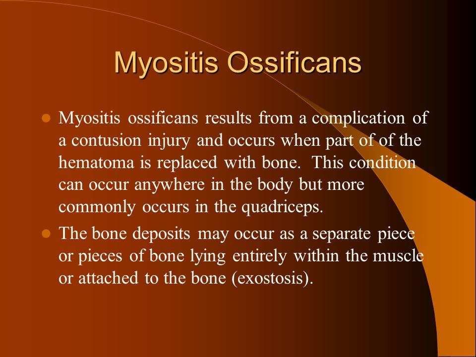 Myositis Ossificans Myositis ossificans results from a complication of a contusion injury and occurs when part of of the hematoma is replaced with bon