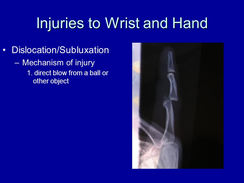 Injuries to Wrist and Hand Dislocation/Subluxation –Mechanism of injury 1. direct blow from a ball or other object