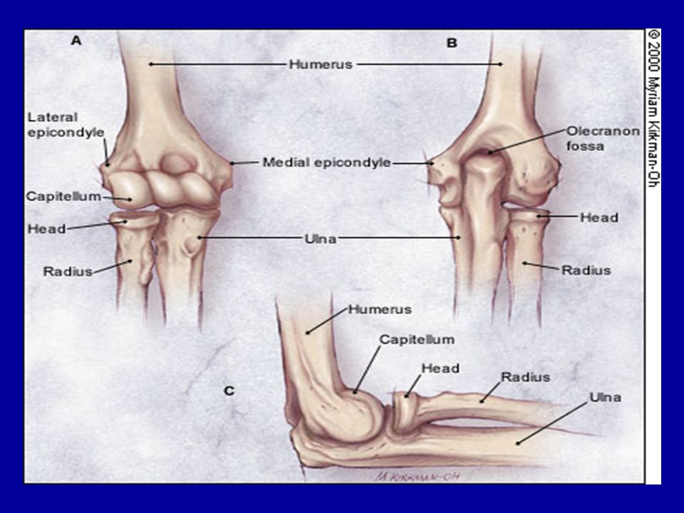 Injuries to Elbow & Forearm Volkmanns Contracture –Damage to muscles of forearm due to injury to blood supply Mechanism of injury 1.