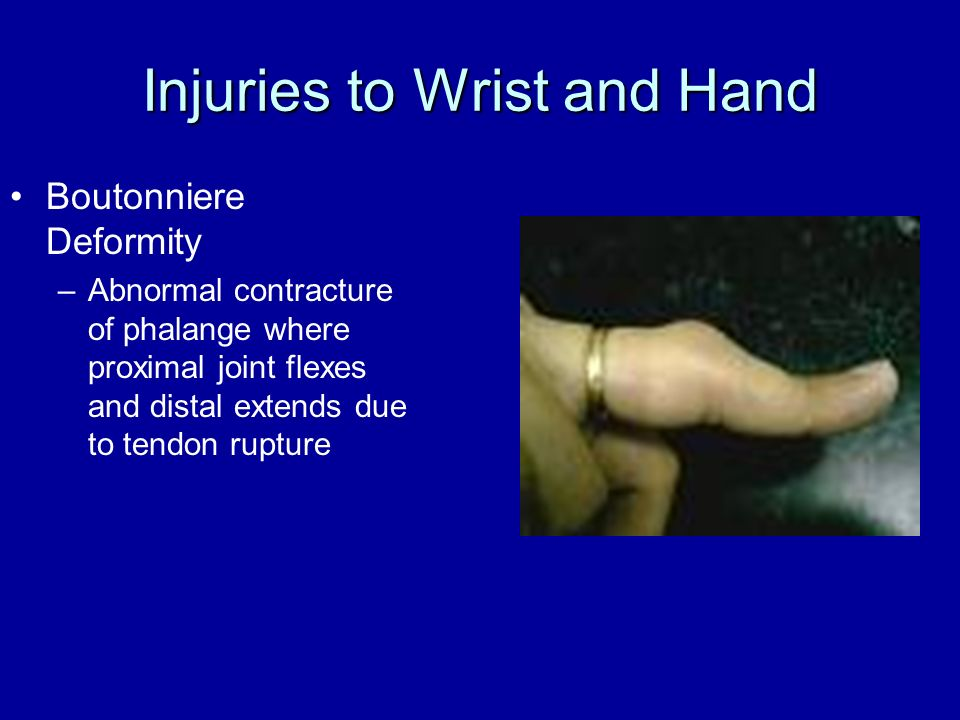 Injuries to Wrist and Hand Boutonniere Deformity –Abnormal contracture of phalange where proximal joint flexes and distal extends due to tendon ruptur
