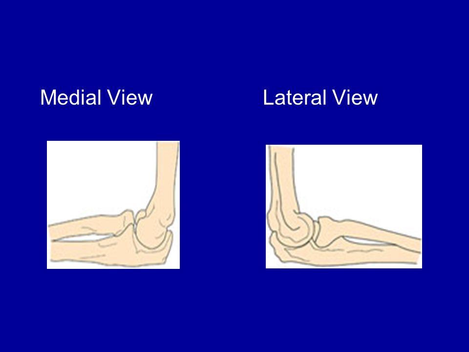 Anatomy of Wrist and Hand Bones Wrist –8 carpal bones Hand –5 metacarpals –5 phalanges Muscles Flexors (anterior side) –Flexor carpi radialis –Flexor carpi ulnaris Extensors (posterior side) –Extensor carpi ulnaris –Extensor carpi radialis longus