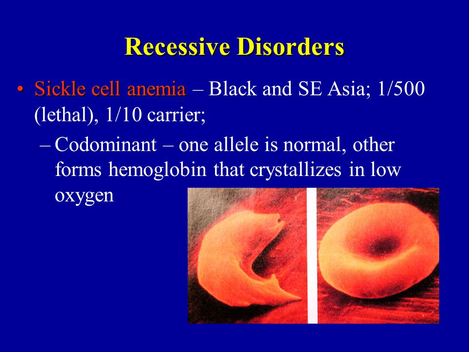 Recessive Disorders Sickle cell anemiaSickle cell anemia – Black and SE Asia; 1/500 (lethal), 1/10 carrier; –Codominant – one allele is normal, other