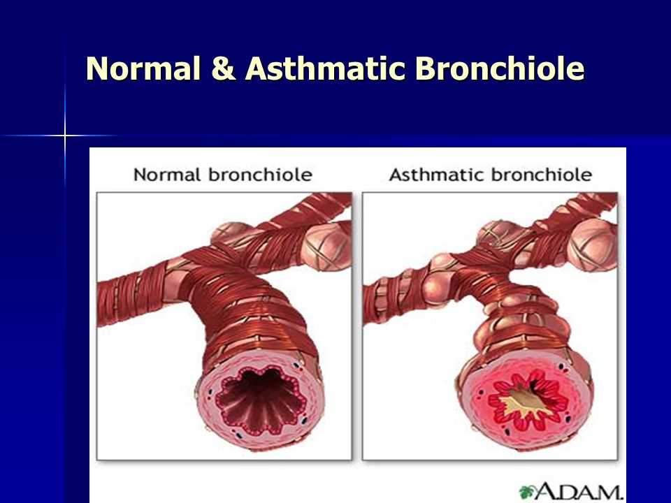 6 Normal & Asthmatic Bronchiole