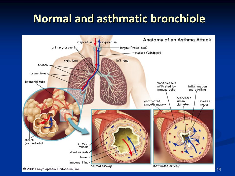 14 Normal and asthmatic bronchiole