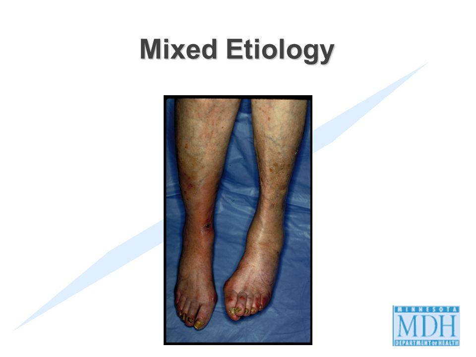 41 Mixed Etiology