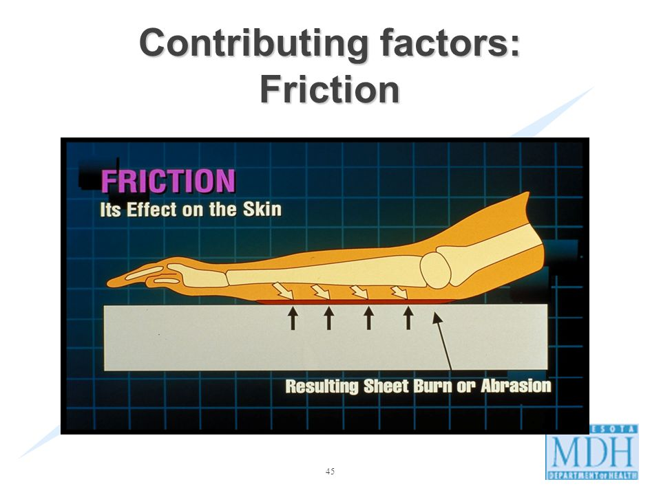 45 Contributing factors: Friction