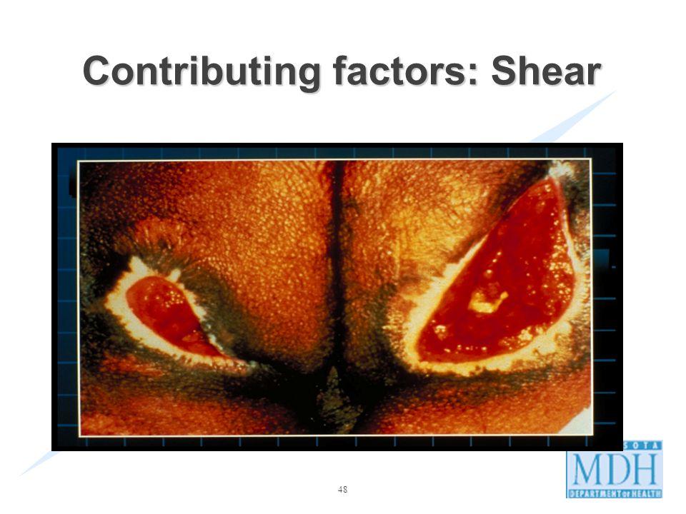 48 Contributing factors: Shear