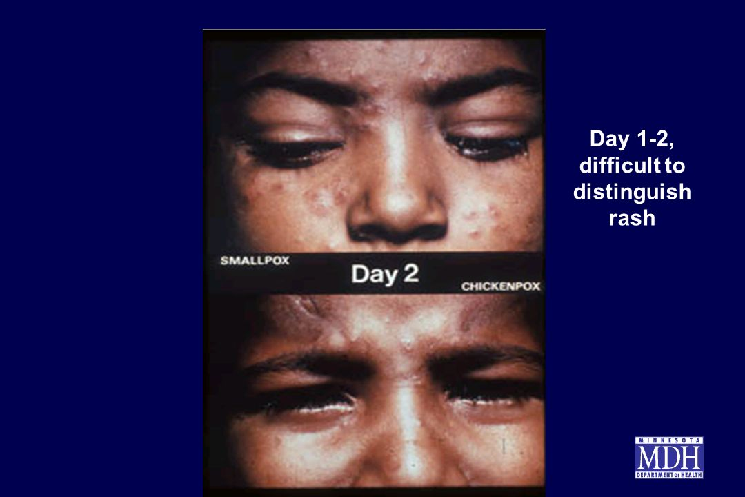 Day 1-2, difficult to distinguish rash