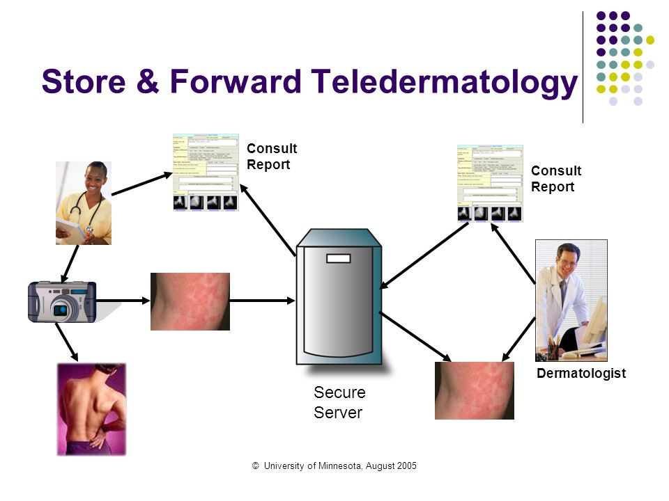 © University of Minnesota, August 2005 Store & Forward Teledermatology Secure Server Dermatologist Consult Report Consult Report