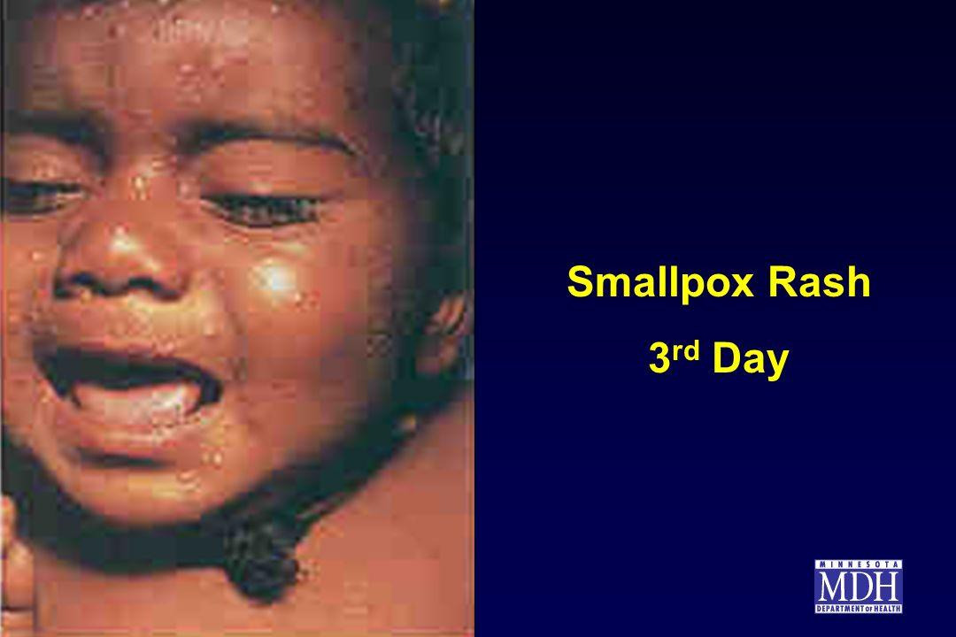 Smallpox Rash 3 rd Day