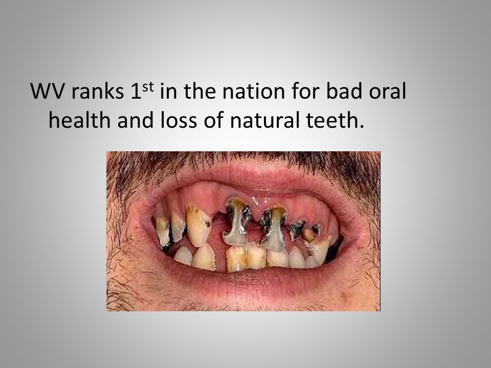 WV ranks 1 st in the nation for bad oral health and loss of natural teeth.