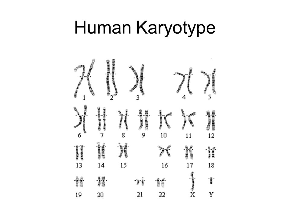 Karyotype Lab You will assess a human karyotype and write a letter to explain the chromosomal abnormality to the patient and patients family.