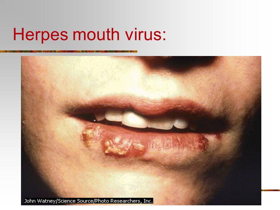 Plant peach virus 5.Virus can infect Plants Animals Bacteria