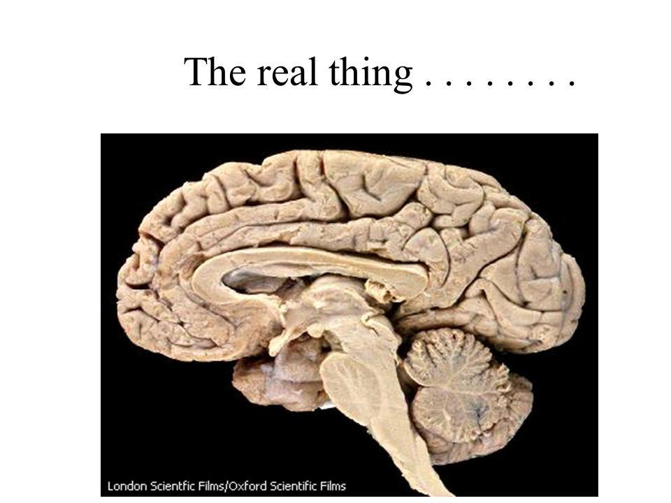 Cerebral Cortex= higher thinking