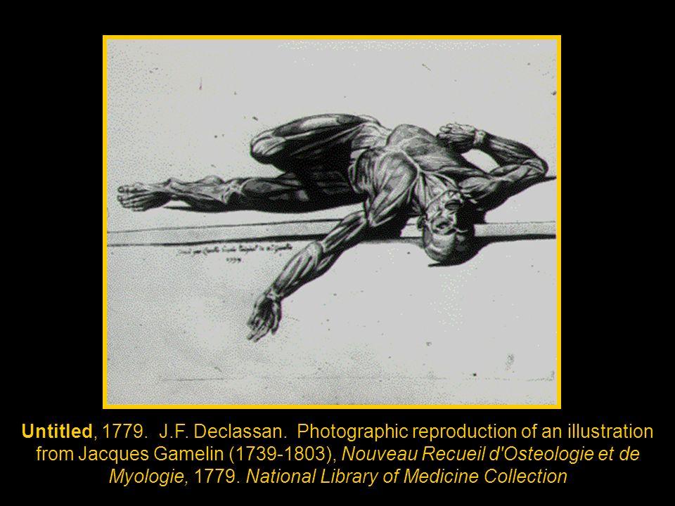 Untitled, 1779. J.F. Declassan. Photographic reproduction of an illustration from Jacques Gamelin (1739-1803), Nouveau Recueil d'Osteologie et de Myol