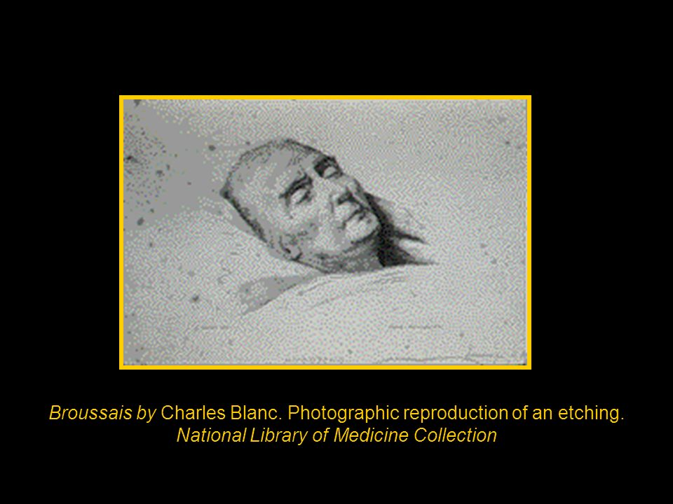 Broussais by Charles Blanc. Photographic reproduction of an etching. National Library of Medicine Collection