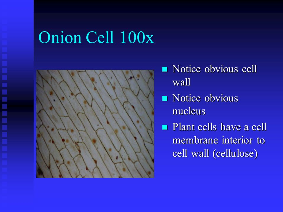 Onion Cell 100x Notice obvious cell wall Notice obvious nucleus Plant cells have a cell membrane interior to cell wall (cellulose)