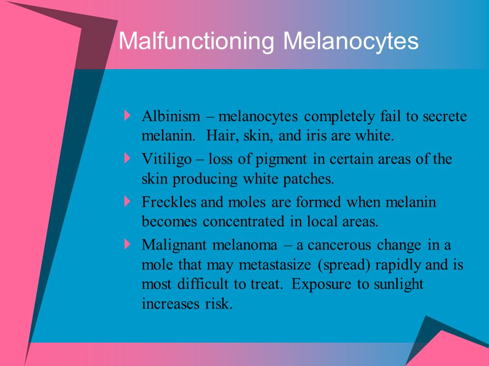 Malfunctioning Melanocytes Albinism – melanocytes completely fail to secrete melanin. Hair, skin, and iris are white. Vitiligo – loss of pigment in ce