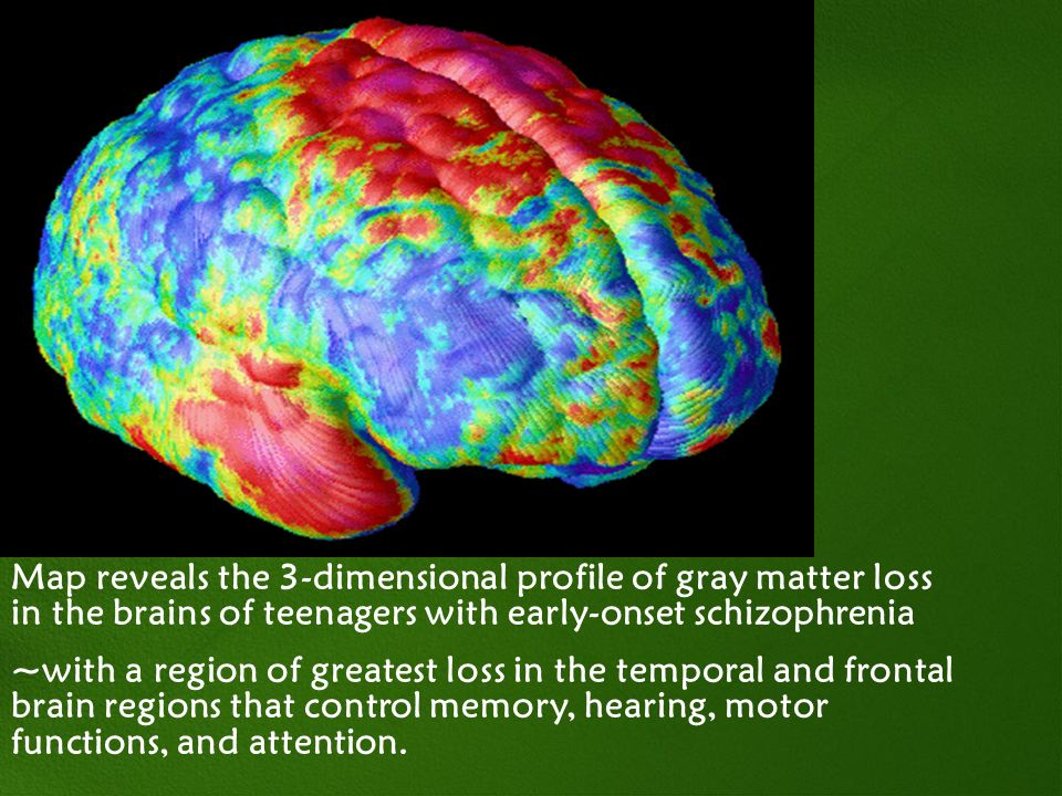 Map reveals the 3-dimensional profile of gray matter loss in the brains of teenagers with early-onset schizophrenia ~with a region of greatest loss in