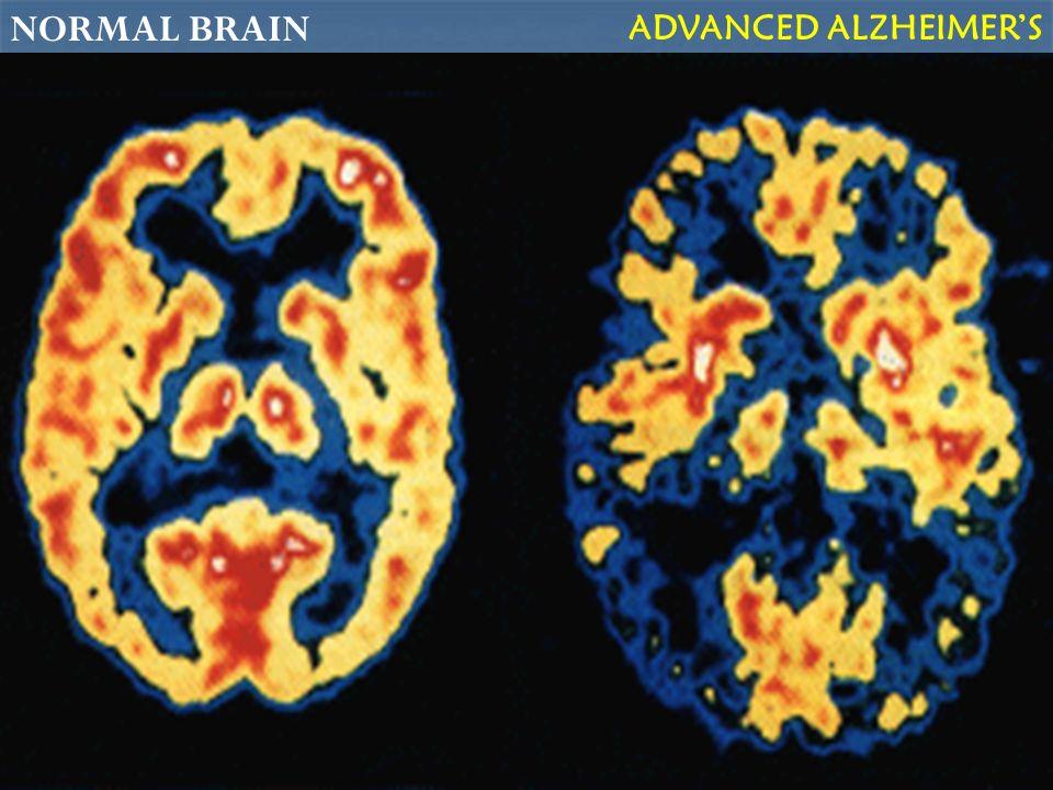 NORMAL BRAIN ADVANCED ALZHEIMERS