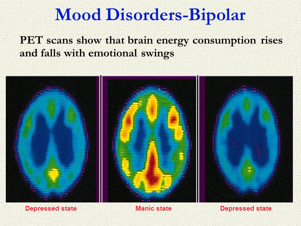 Mood Disorders-Bipolar PET scans show that brain energy consumption rises and falls with emotional swings Depressed stateManic stateDepressed state