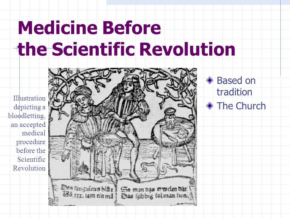 Medicine Before the Scientific Revolution Based on tradition The Church Illustration depicting a bloodletting, an accepted medical procedure before th