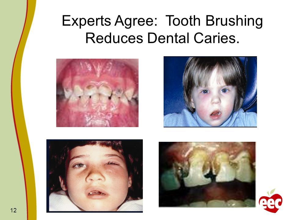 12 Experts Agree: Tooth Brushing Reduces Dental Caries.