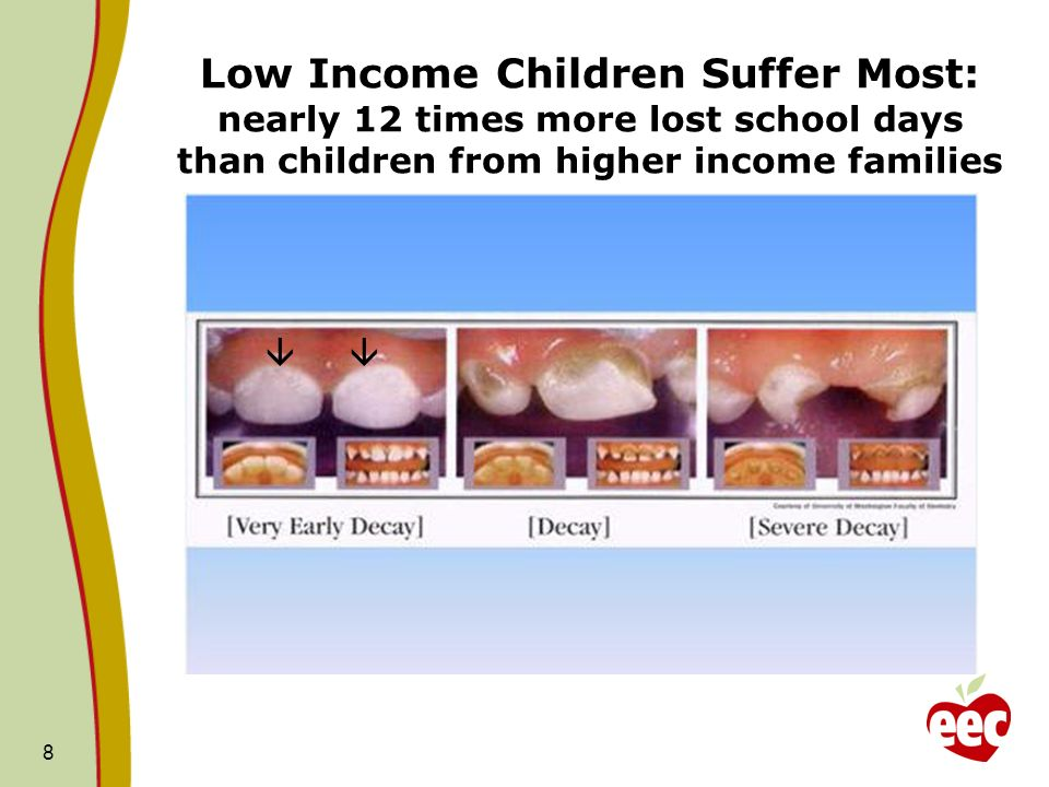Early Childhood Caries (ECC) 9