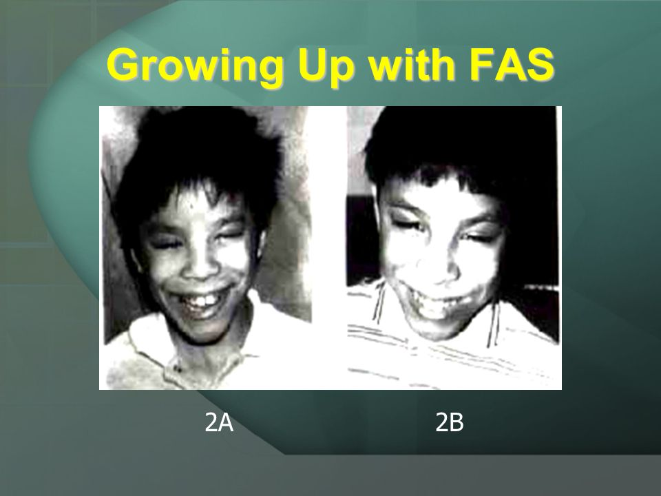 Growing up with FAS 1A 1B