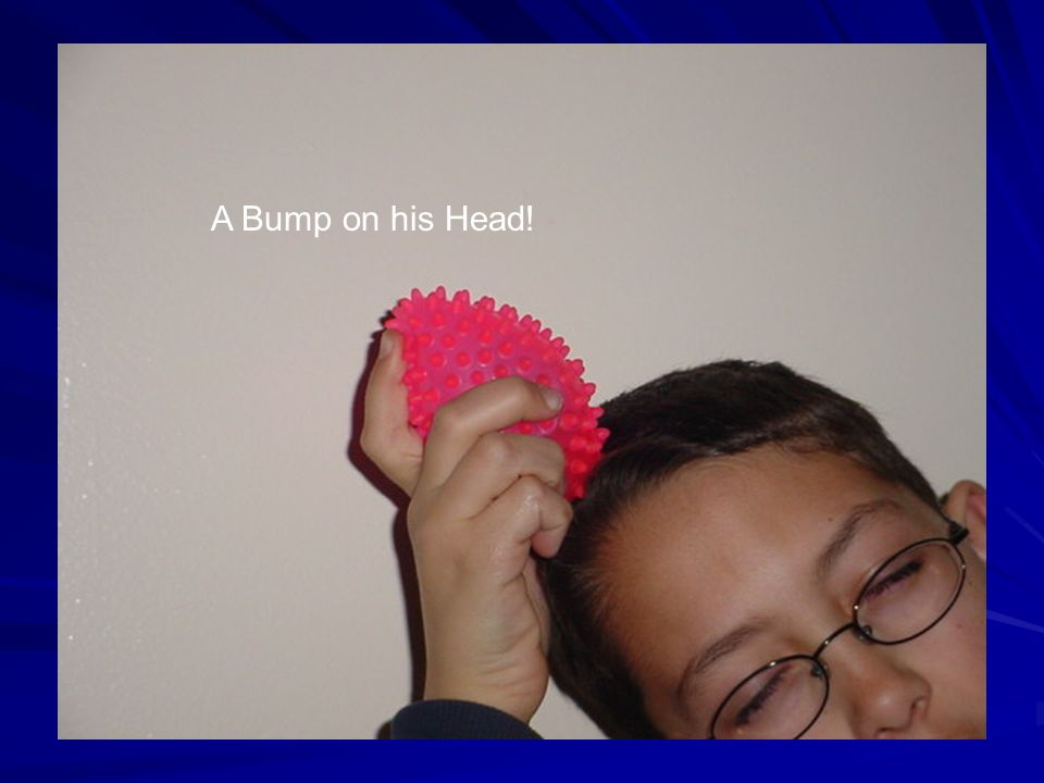 A Bump on his Head!