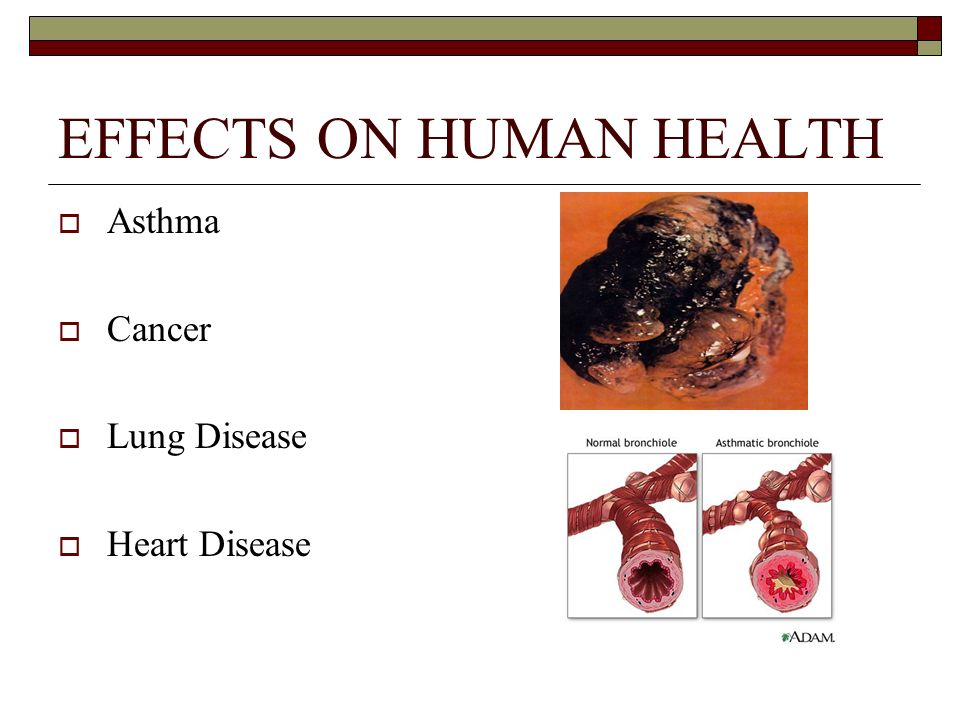 EFFECTS ON HUMAN HEALTH Asthma Cancer Lung Disease Heart Disease