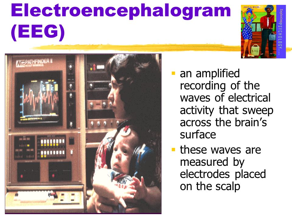 Electroencephalogram (EEG) an amplified recording of the waves of electrical activity that sweep across the brains surface these waves are measured by