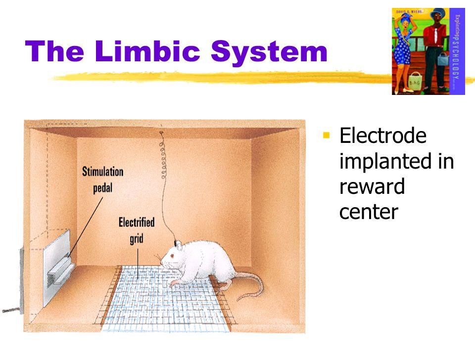 Electrode implanted in reward center