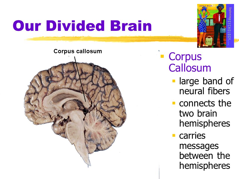 Our Divided Brain Corpus Callosum large band of neural fibers connects the two brain hemispheres carries messages between the hemispheres Corpus callo