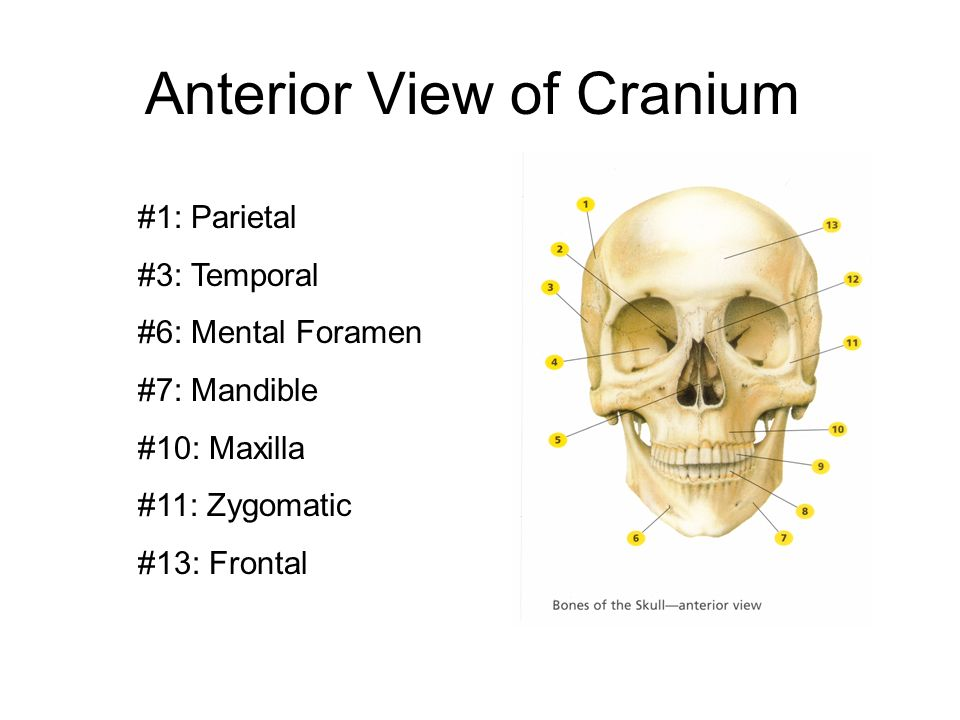 Anterior View of Cranium #1: Parietal #3: Temporal #6: Mental Foramen #7: Mandible #10: Maxilla #11: Zygomatic #13: Frontal