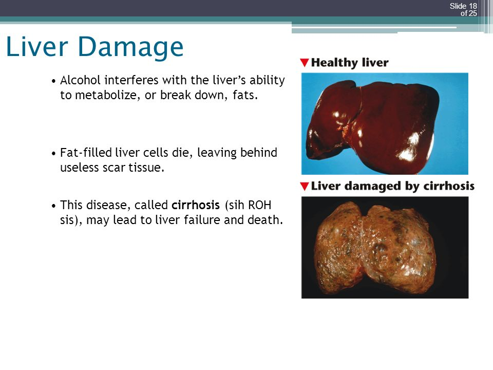 Slide 18 of 25 Liver Damage Alcohol interferes with the livers ability to metabolize, or break down, fats. Fat-filled liver cells die, leaving behind